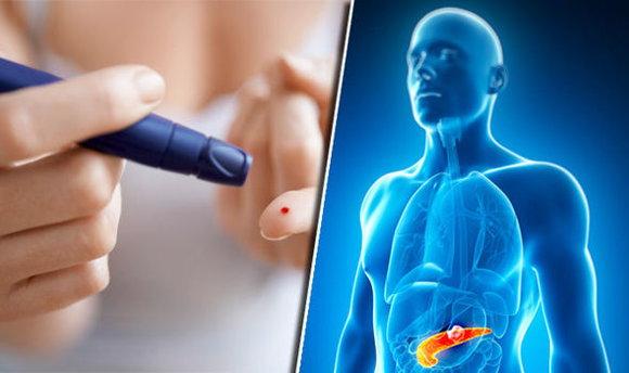 糖尿病的主要原因与控制方式