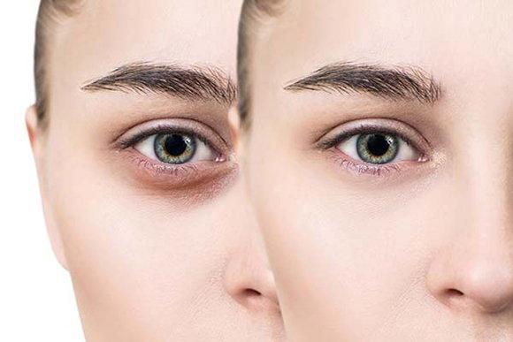 黑眼圈該如何做好改善?如何緩解黑眼圈?